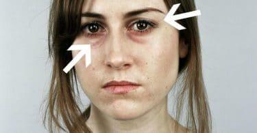 15 سبب للتعب و الإرهاق منهم الأكل الغلط وقلة شرب الميه والاكتئاب