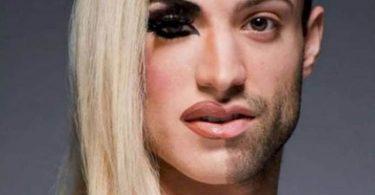 اضطراب الهوية الجنسية أسبابه وأعراضه وأزاي بيتم تشخصيه وعلاجه